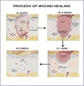 Primeros auxilios: Heridas