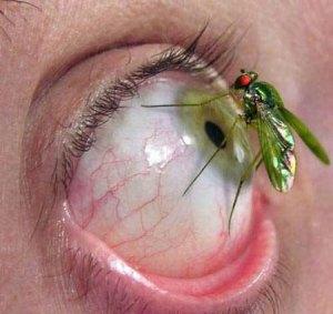 Primeros Auxilios: Lesiones Oculares