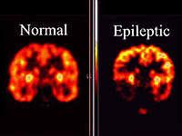 Evaluacin de un caso de epilepsia del lbulo