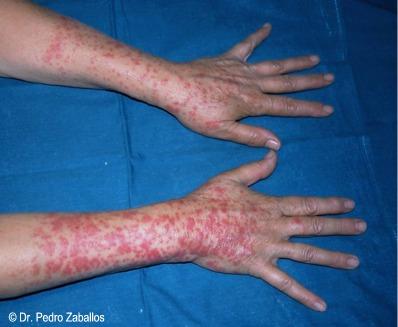 El tratamiento de la psoriasis los consejos de los enfermos