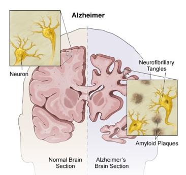 alzheimers-diagram-brain2