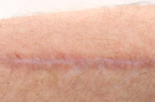 cicatriz-queloides
