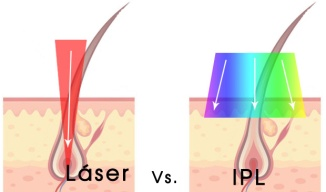 láser-vs-ipl