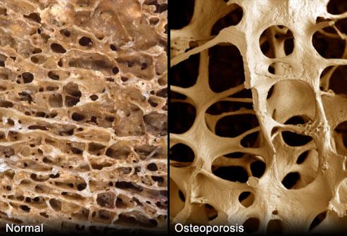 osteoporosis (1)