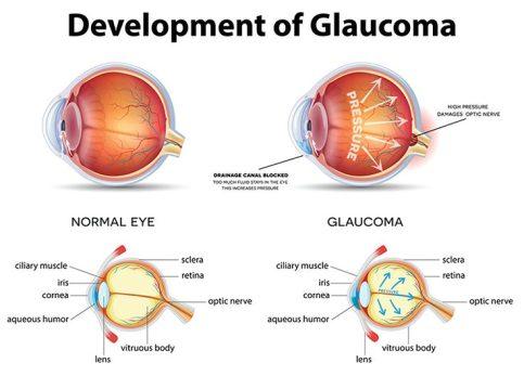 glaucoma-736x530