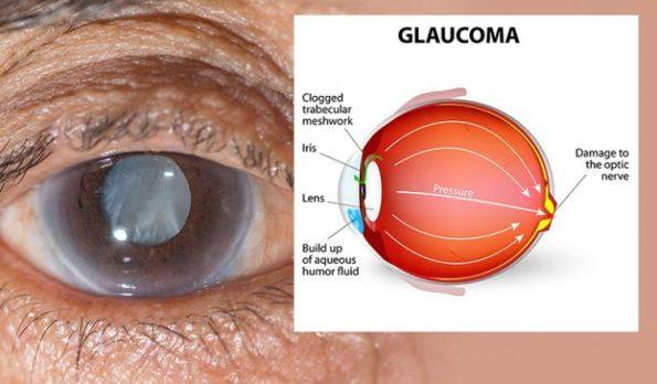 glaucoma2-752x440